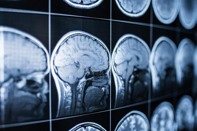 X-ray of the head and brain of a person royalty free stock images