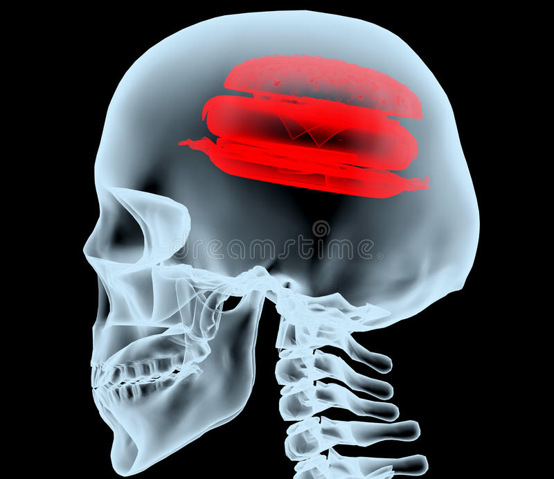 X-ray of a head with the burger instead of the brain. 3d illustration royalty free illustration