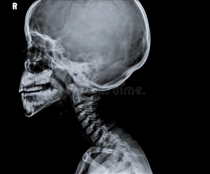 X ray of head showing part of neck. stock photography