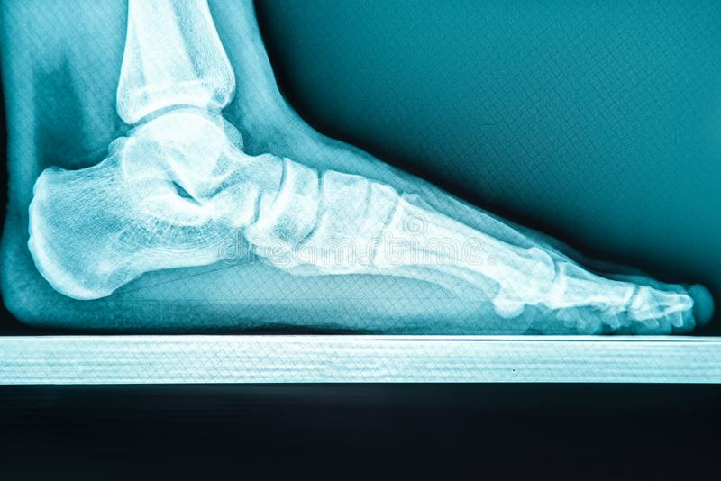 X-ray human foot with flatfoot stock photos