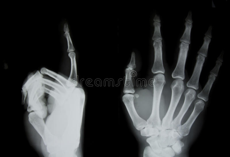 X-ray of human hand stock photo. Image of picture, anatomy - 53764574
