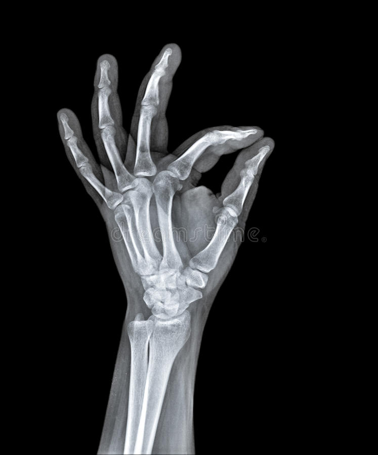 X Ray of human hand. royalty free stock images