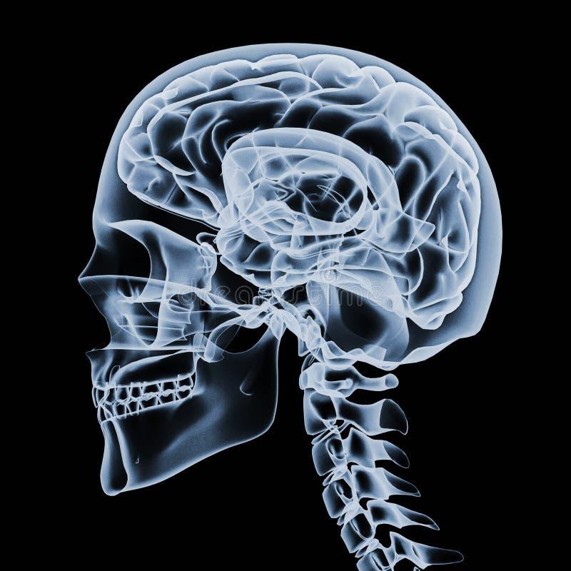 X-ray Of A Human Head Royalty Free Stock Photo