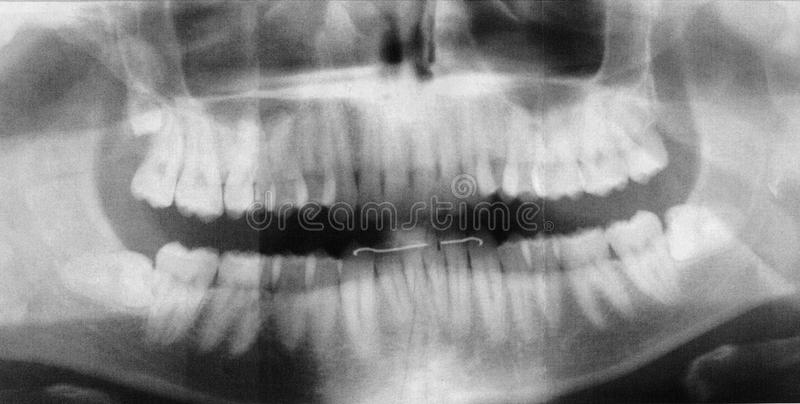 X-ray of human jaw. X-Ray image of a human jaw or mouth or teeth royalty free stock image
