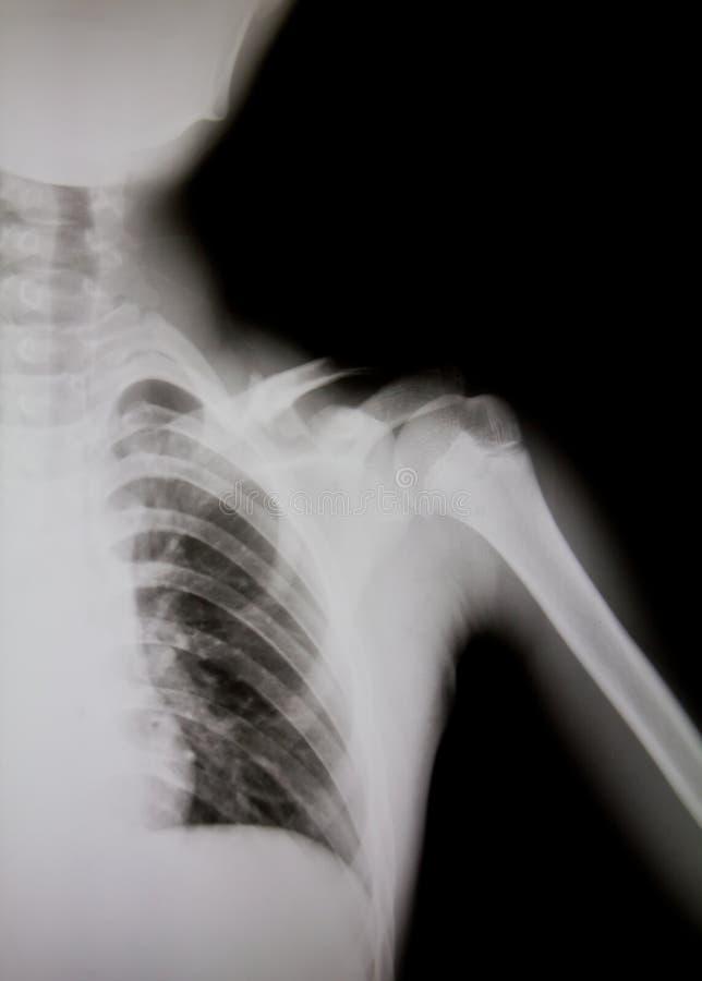 X-ray of human shoulder (broken shoulder) stock photo