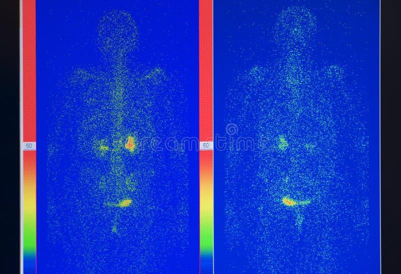 X-ray image stock image