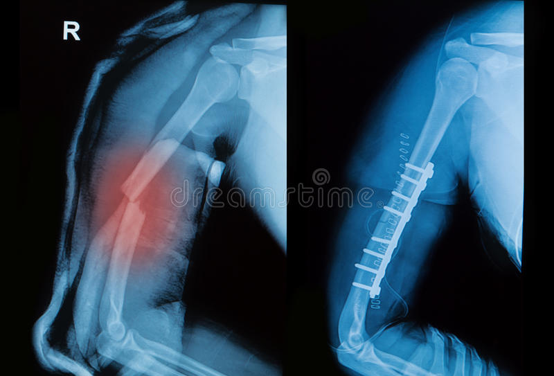 X-ray image of borken arm bone show pre- post operation. (Anatomy of fracture humerus royalty free stock image