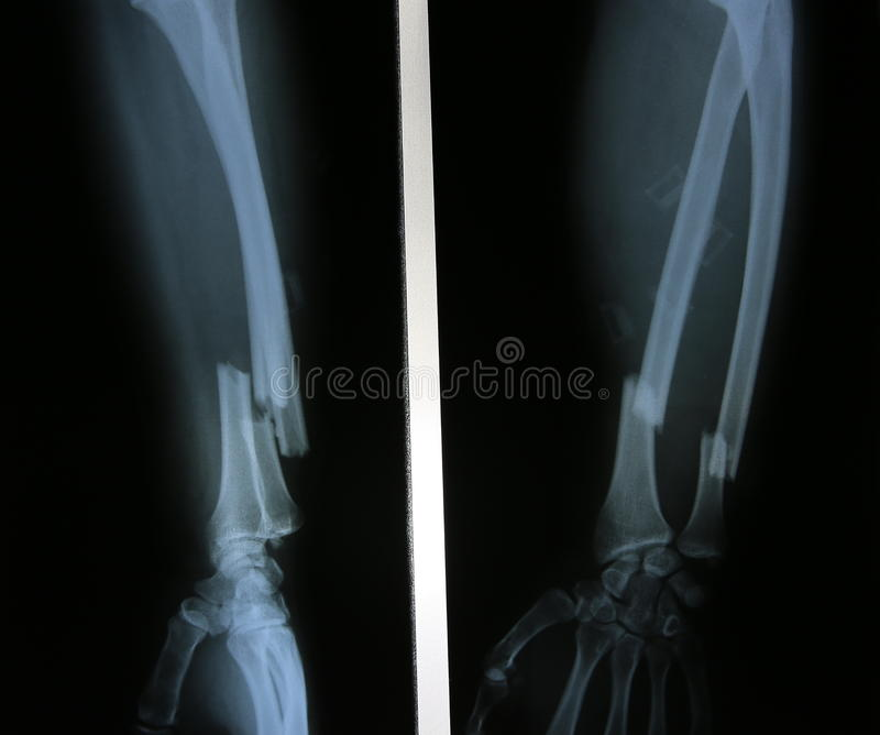 X-ray Image Of Broken Forearm, AP And Lateral View Show Fracture ...