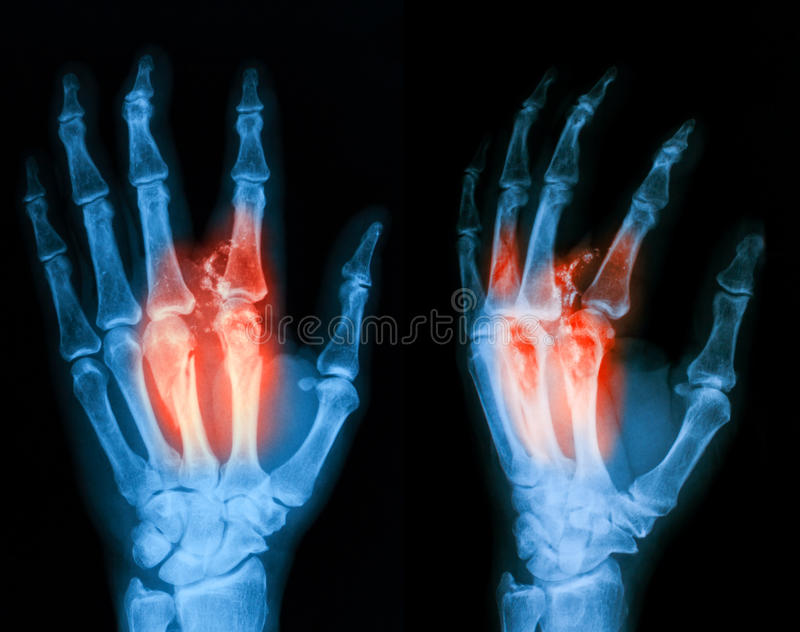 X-ray Image Of Broken Hand, Lateral View. Stock Image - Image of ...