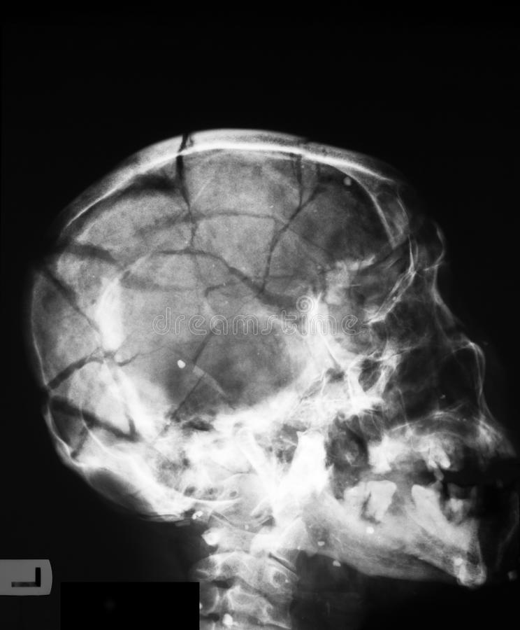 X Ray Image Of Broken Skull Stock Image Image Of Frontal