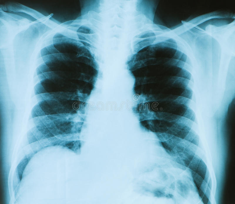Download X-ray image of chest bones stock image. Image of injury - 13074793