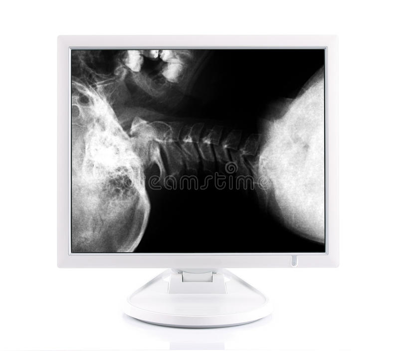 X-ray image and computer. Concept modern medical diagnoses royalty free stock photos