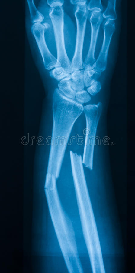 X-ray image of forearm, AP view (Antero-posterior view, show fra. X-ray image of forearm, AP view show ulna and radius fracture royalty free stock photo