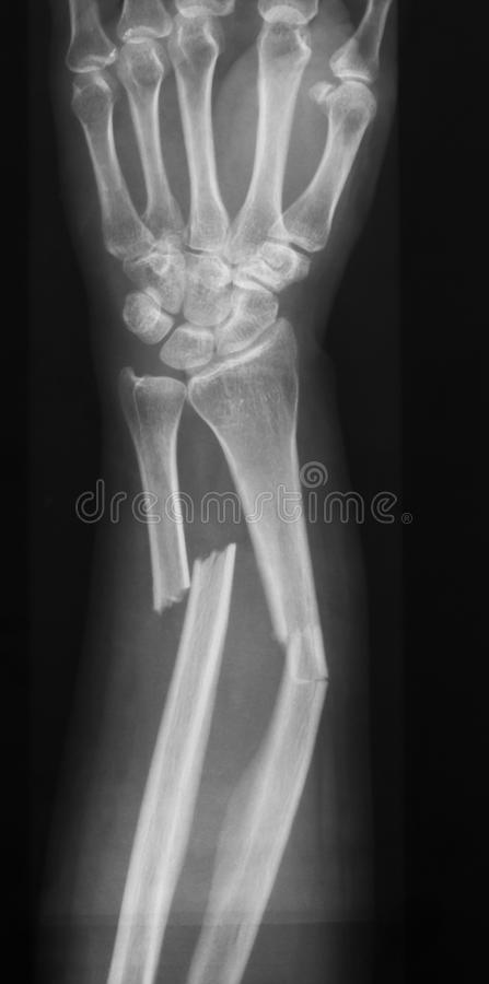 X-ray image of forearm, AP view (Antero-posterior view, show fracture of ulna and radius. X-ray image of forearm, AP view, show ulna and radius fractures royalty free stock photos