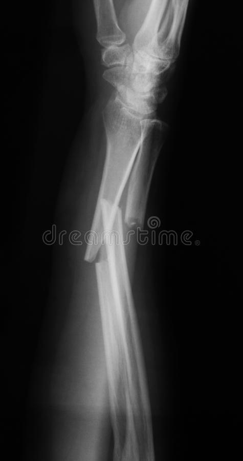 X-ray image of forearm,lateral view, show fracture of ulna and r. X-ray image of broken forearm, lateral view, show ulna and radius fractures stock image