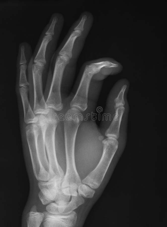 X-ray image of hand, oblique view,. Showing fractured index finger joint stock photos