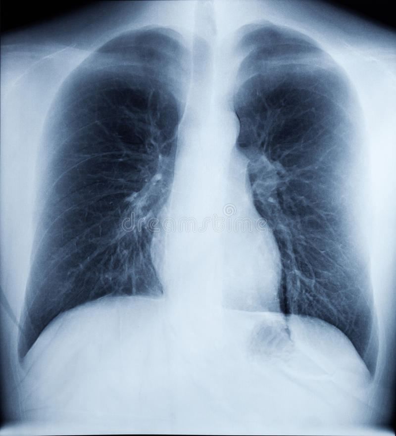 Download X-Ray Image Of Healthy Chest Stock Photo - Image: 18537698