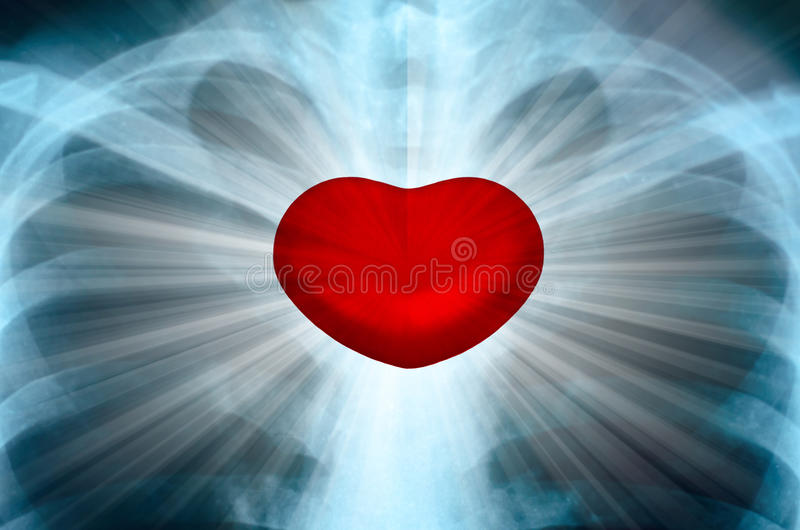 X-Ray Image Of Human Chest with Energy Radiating From Heart Chakra royalty free stock image