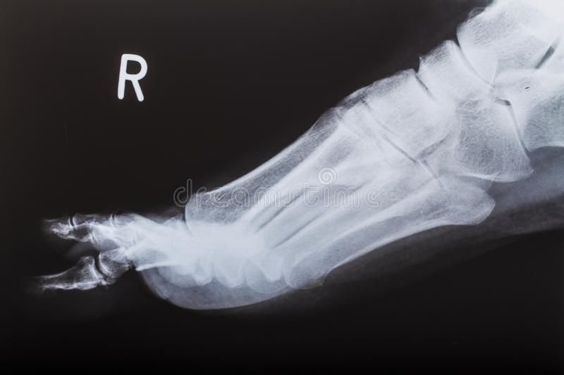 X-ray image of human foot stock photo