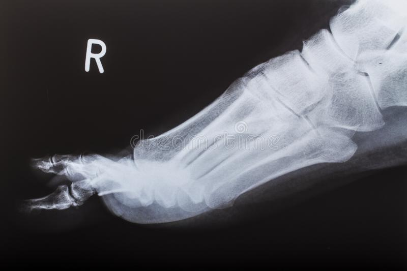 X-ray image of human foot stock photo. Image of anatomy - 101834328