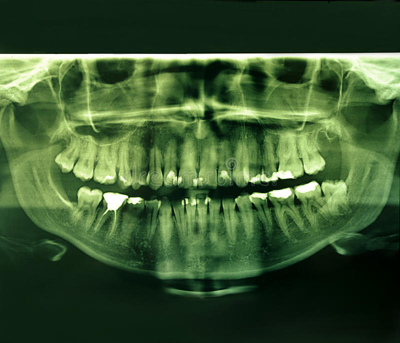 Download X-Ray Image Of A Human Jaw Stock Images - Image: 28517394