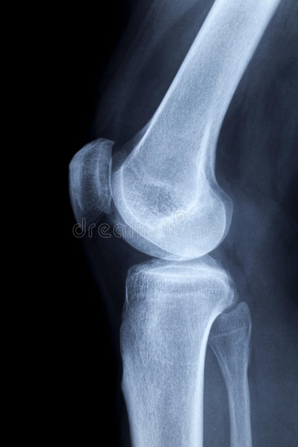 Download X-ray Image Of A Human Knee Laterally Stock Image - Image: 22623131