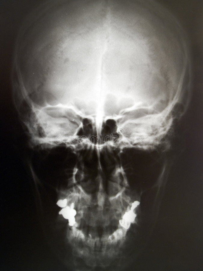 X-ray image of human skull stock images