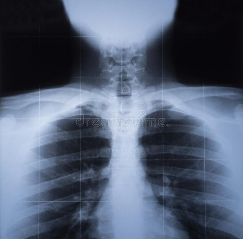 X ray image of human thorax.  royalty free stock photos