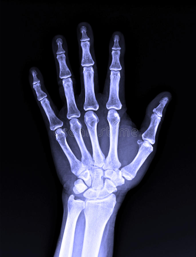 X-Ray image of male human hand royalty free stock images