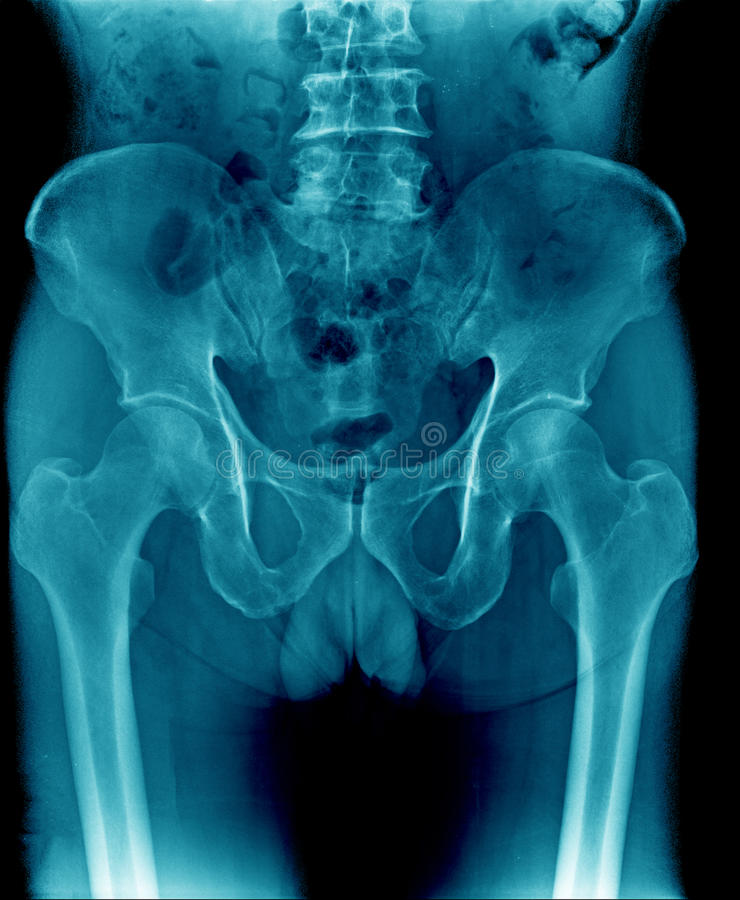 X-ray image pelvic bone and part of femur, spine. Close up x-ray image pelvic bone and part of femur, spine and degenerative change of lumbar spine stock photos