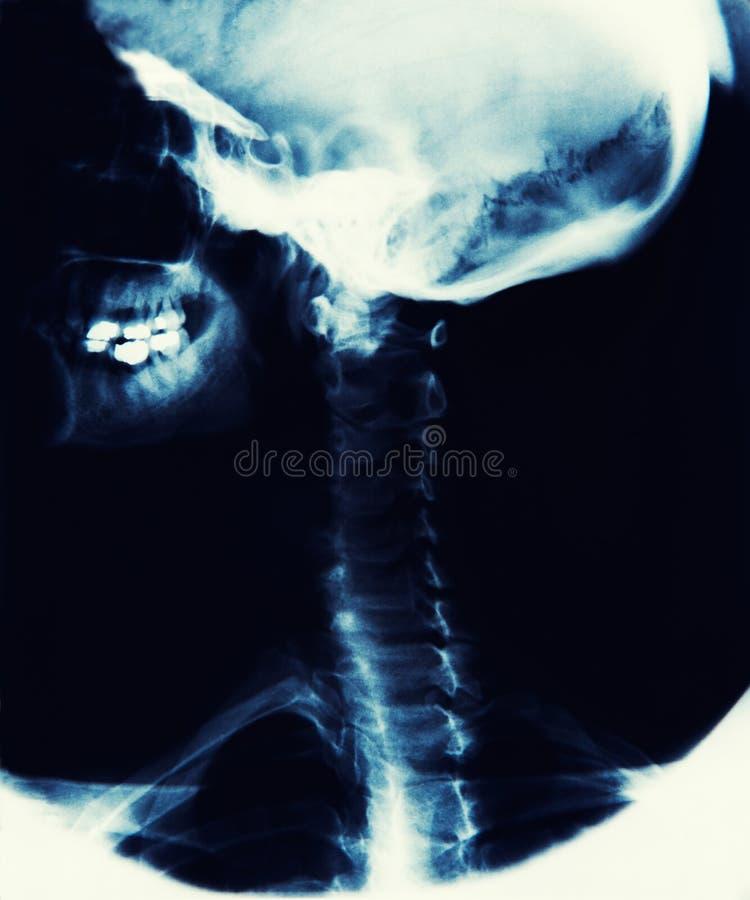 X Ray Image Showing Skull, käke och rygg arkivfoto