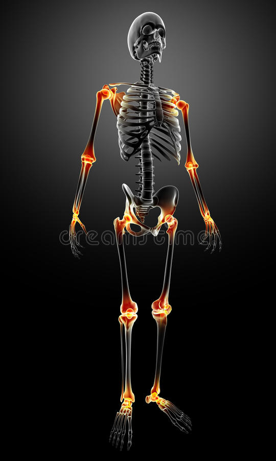 X-ray With Joint Pain Royalty Free Stock Image