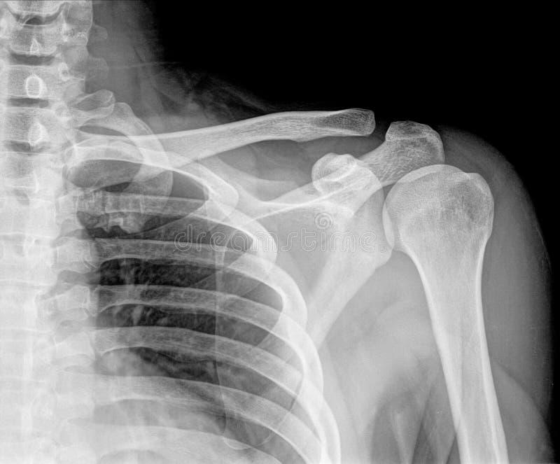 X-ray stock photo. Image of break, back, anatomy, human - 54697540