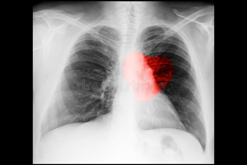 X Ray Of Love Stock Image Image Of Exam Anatomy Bone 34468169