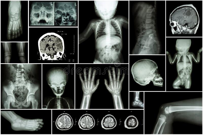 X-ray multiple part of child's body & multiple disease ( stroke , brain tumor , rheumatoid arthritis , sinusitis , gouty arthriti. S , etc)( skull chest lung royalty free stock photo