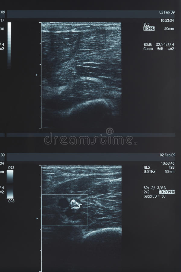X-ray, muscle ultrasound, medical stock photo