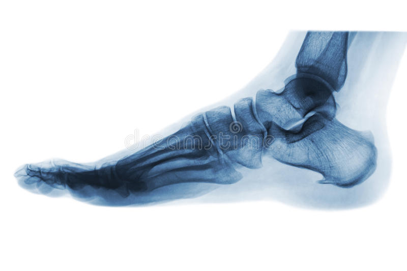X-ray normal human foot . Lateral view .Invert color style . stock photo