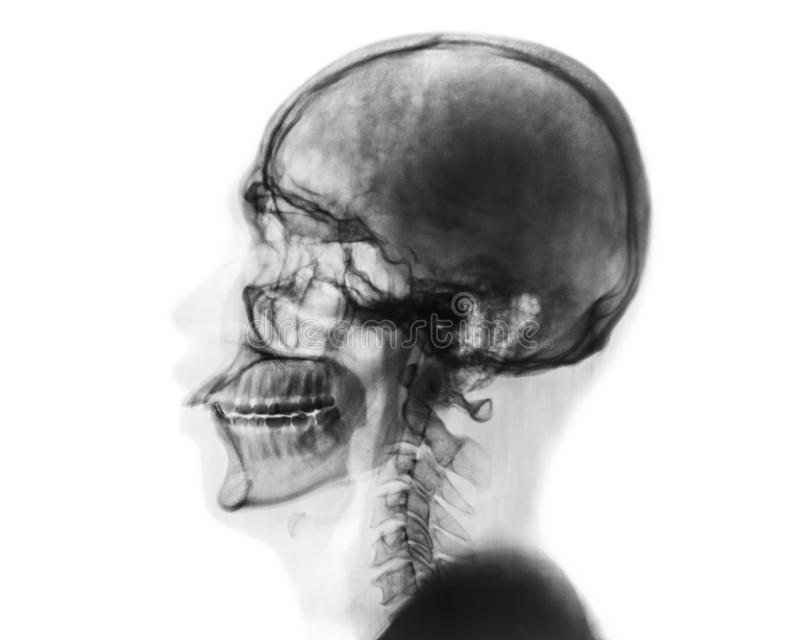 X-ray normal skull and cervical spine . Lateral view . Invert color style . royalty free stock photo