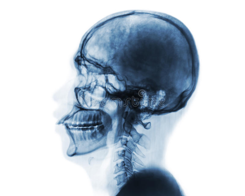 X-ray normal skull and cervical spine . Lateral view .Invert color style . X-ray normal skull and cervical spine . Lateral view . Invert color style royalty free stock image