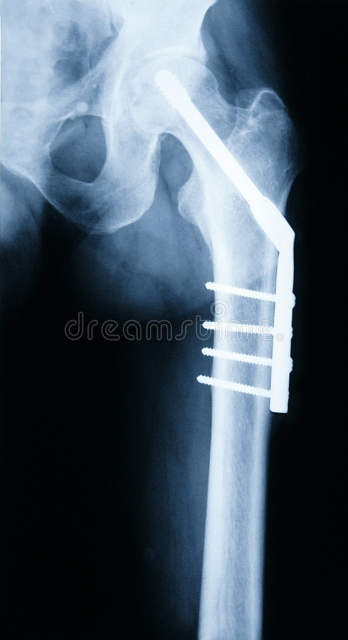 Free X-ray Of A Hip Stock Photo - 2134170