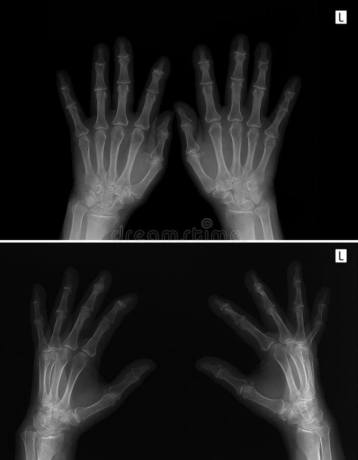 Free X-ray Of Hands. Arthritis-arthrosis. Royalty Free Stock Photo - 91465015