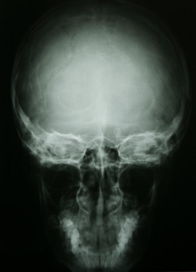 Download X-ray Photo Of A Human Skull Stock Photo - Image of cavity, electromagnetic: 11449692