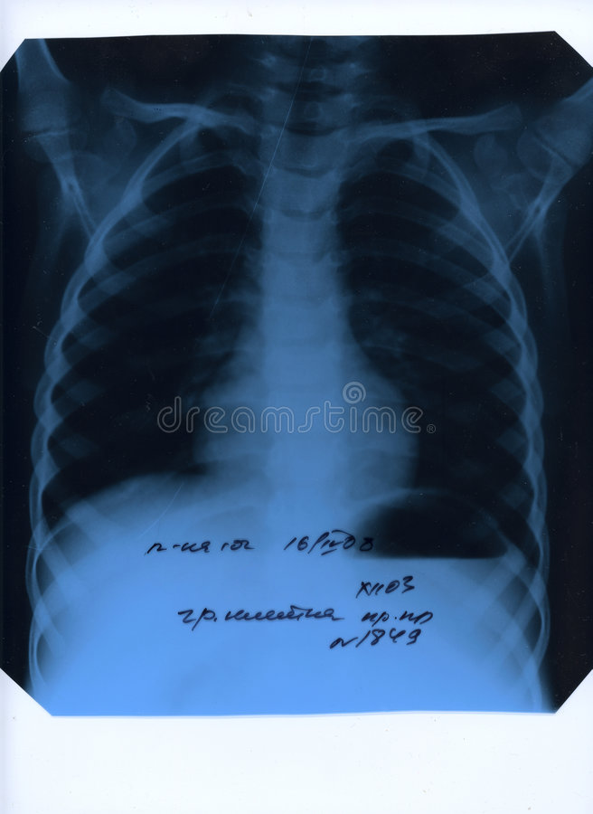 Download X-ray photograph of chest stock image. Image of clinic - 4997913