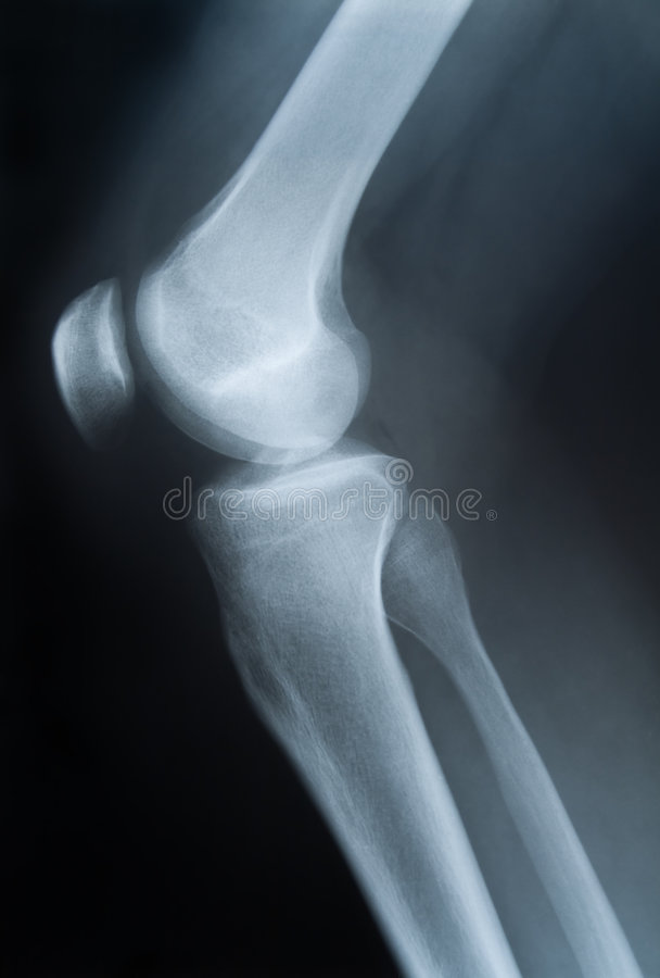 Download X-ray photograph of knee stock image. Image of healthcare - 3531063