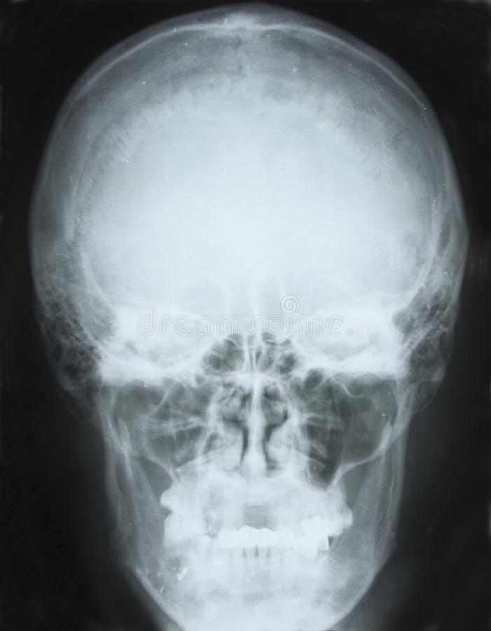 Free X-ray Picture Stock Images - 10387014