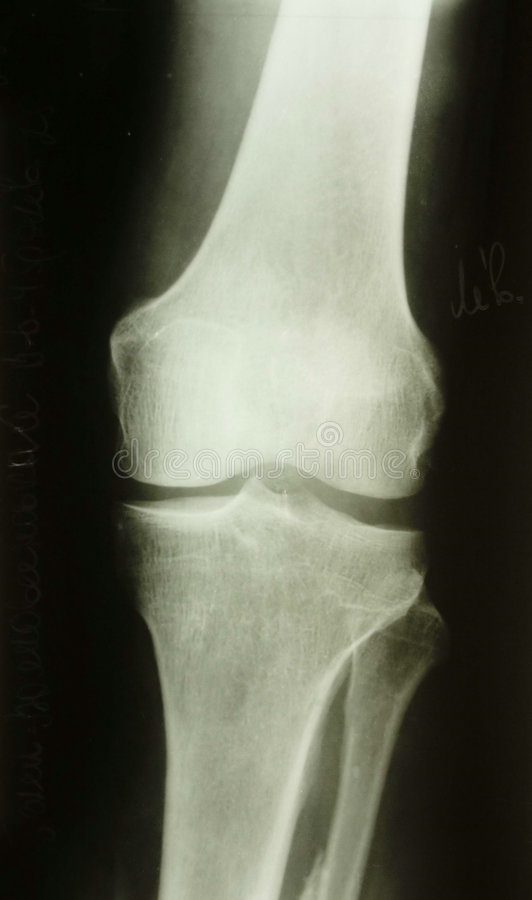X-ray picture. Of the knee royalty free stock photos