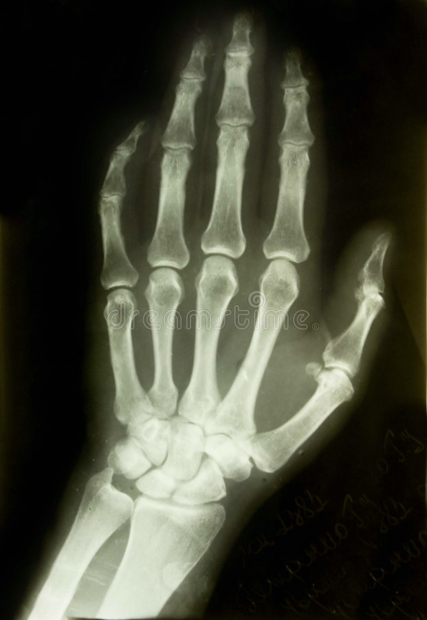 X-ray picture. Of the palm stock photography