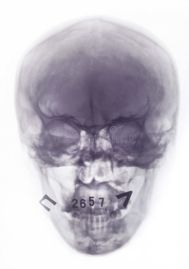X-ray picture. Colored X-ray picture of the skull stock image
