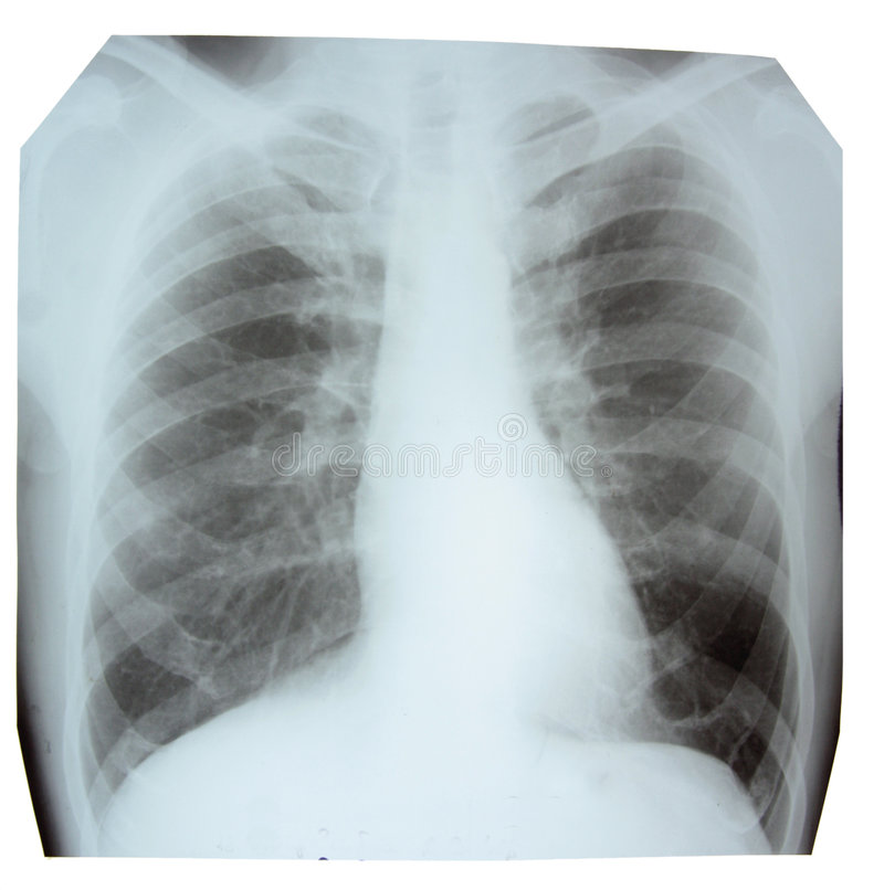 Download X-ray Picture Stock Photos - Image: 7743963