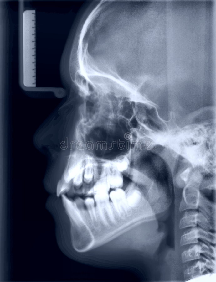 X-ray picture of the skull of the person stock photos